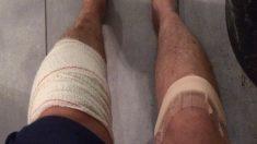 Il devait être opéré du genou gauche, le chirurgien lui ouvre le genou droit!