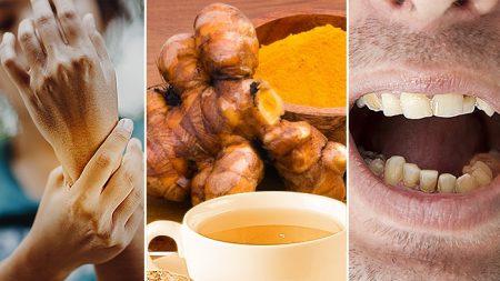 8 affections où le thé au gingembre peut agir comme remède – Souffrez-vous d'arthrite ou de carie dentaire?