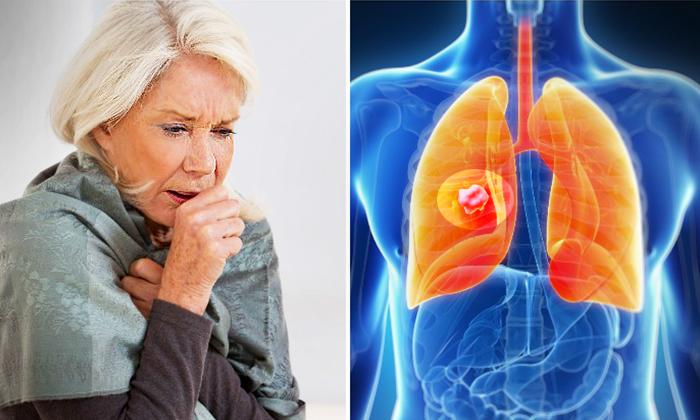 9 signes avant-coureurs du cancer du poumon à surveiller – êtes-vous constamment en train de reprendre votre souffle?