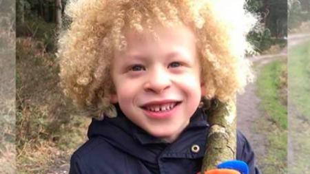 Un enfant de 5 ans qui avait honte de son albinisme est maintenant un modèle pour une marque de mode